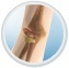 Elbow Fractue